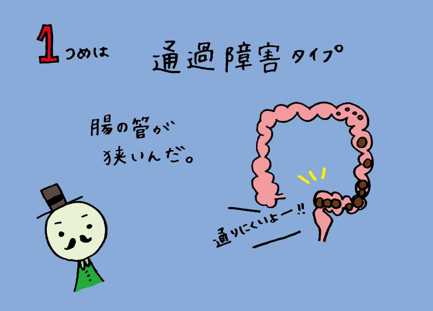 腸管が狭い
